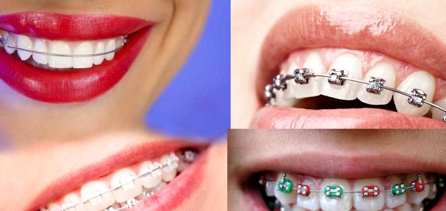 aparaty na zęby ursynow